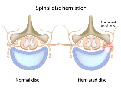 image of herniated disc