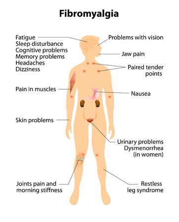 diagram of fibromyagia symptoms